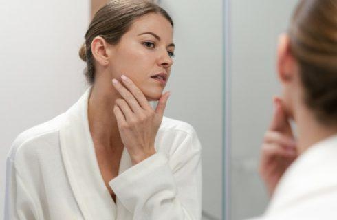 Dit is alles wat je moet weten over acne