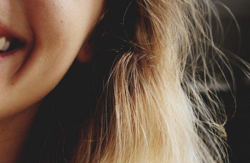 Zo verdwijnt deze winter jouw droge huid!